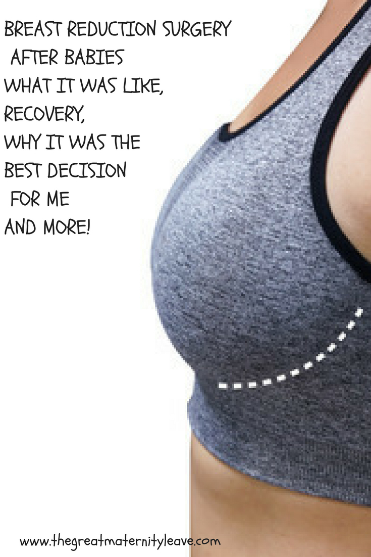 Breast discharge after breast reduction something